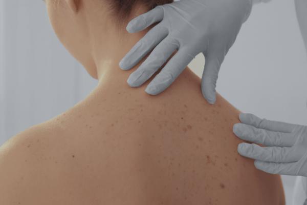 smart skin dermatology