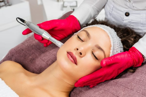 micro-needling -smart skin dermatology